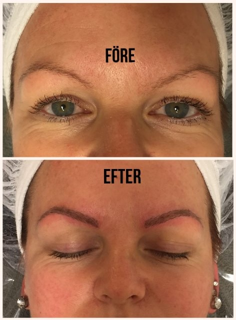3d ögonbryn eftervård